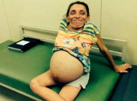 Natal: Anã de 1,2 metro de altura dá à luz a trigêmeas