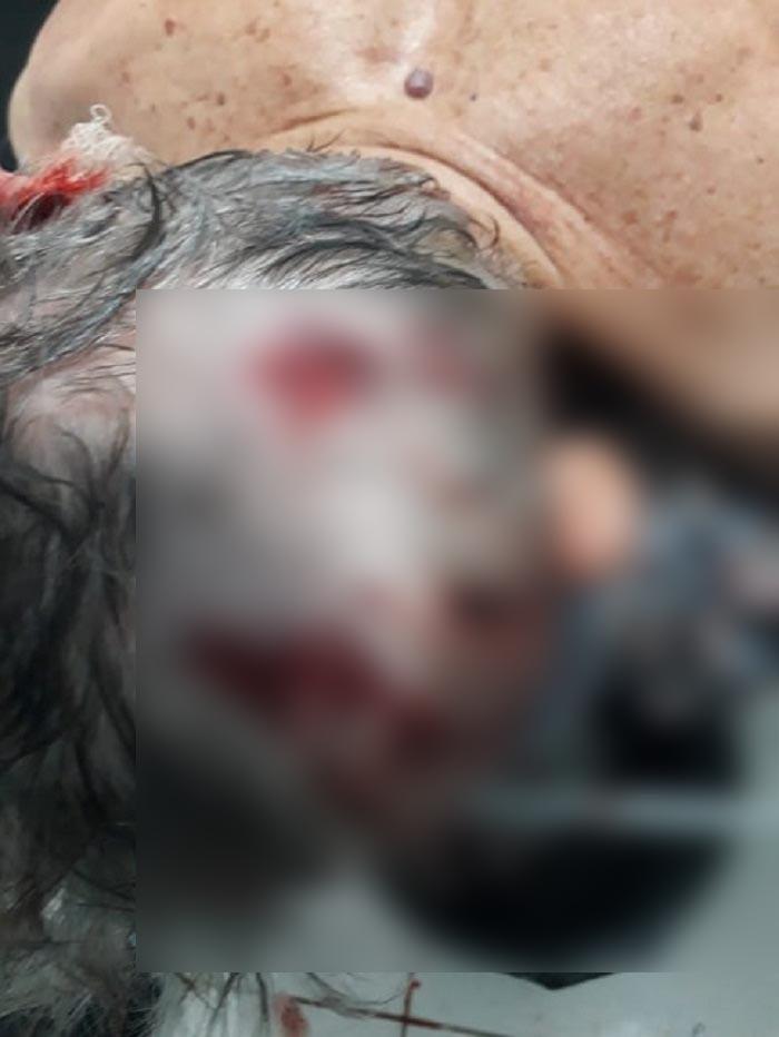 Casal de idosos é torturado após ter residência invadida por assaltantes na zona rural em Rio do Antônio