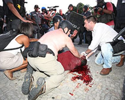 Rio de Janeiro: Cinegrafista é internado após ser atingido por bomba em protesto