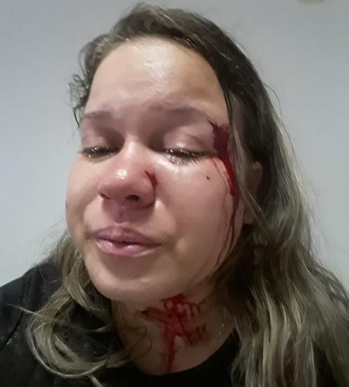 Homem espanca namorada do pai em Livramento e deixa mulher com vários ferimentos