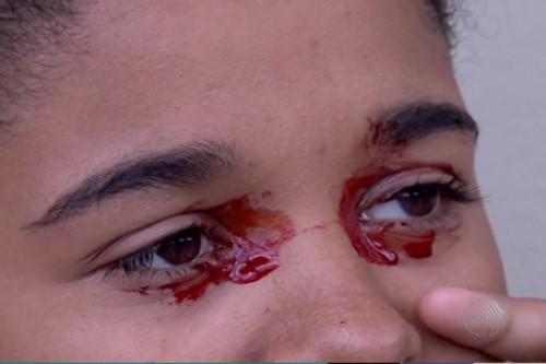 Adolescente de 14 anos sofre com saída de sangue pelos olhos, diz tia