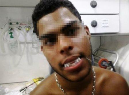 Ipiaú: Jovem costura dentadura de vampiro na boca e vai parar em hospital