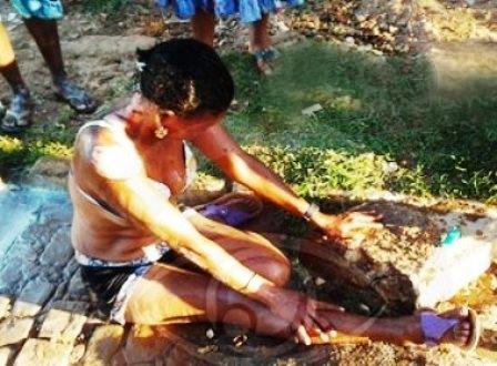 Irecê: Mulher ateia fogo no próprio corpo