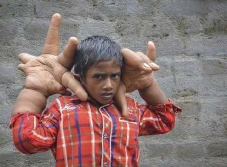 Menino com mãos gigantes surpreende médicos na Índia