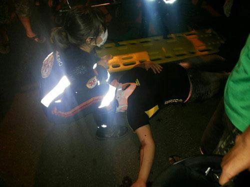Colisão entre duas motos deixa uma mulher ferida na Avenida Dr. Guilherme Dias