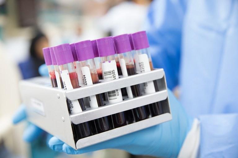 Covid-19: Secretário diz que vacinação deve começar em janeiro e produção local em abril