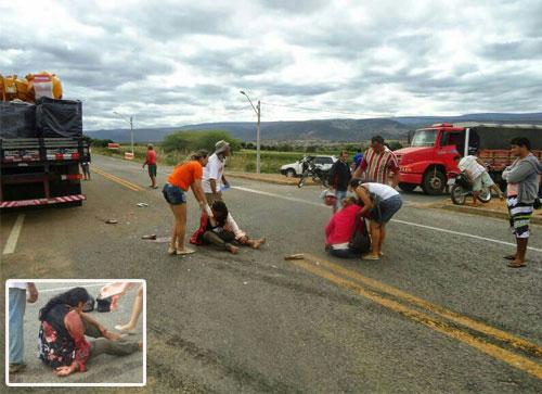 JUSSIAPE: Acidente envolvendo motocicleta e caminhão deixa mulher com braço esmagado