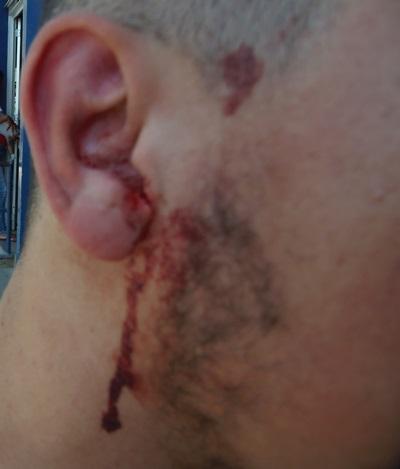 Violência: Jovem é brutalmente espancado por três rapazes em frente a sua residência