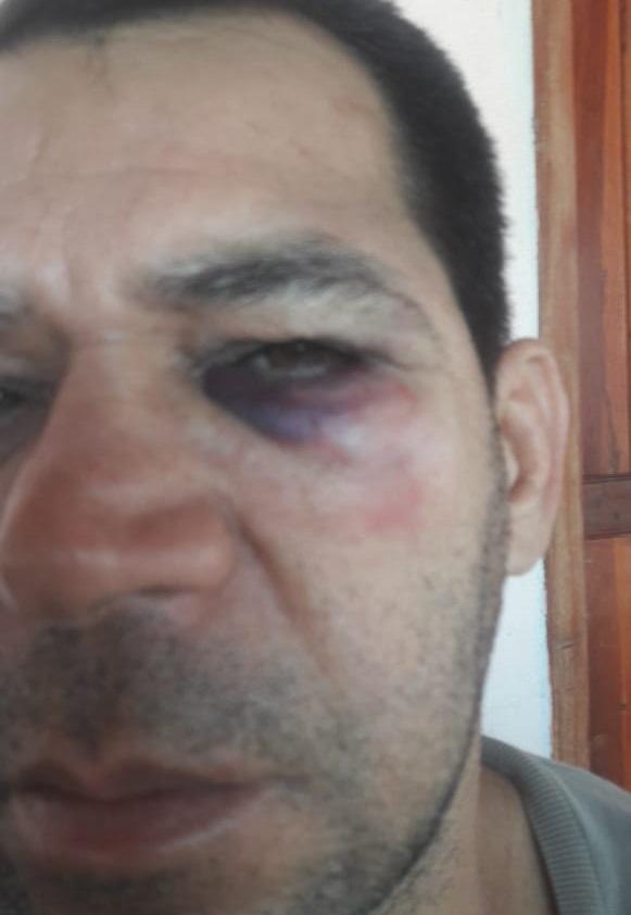 Vídeo: Vereador relata agressão de secretária de Rio do Antônio durante fiscalização de obra no distrito de Ibitira