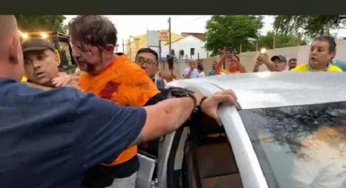 Senador licenciado cid Gomes baleado no tórax está consciente e em evolução clínica, diz boletim médico