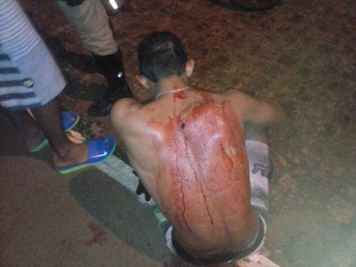 Homem sofre tentativa de homicídio próximo a linha férrea, na Rua Da Estação