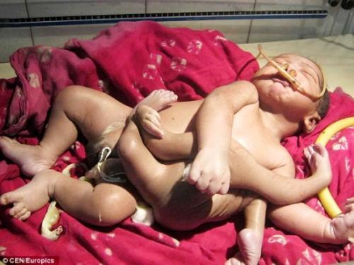 Criança nasce com 4 pernas e 4 braços e moradores acreditam ser um deus