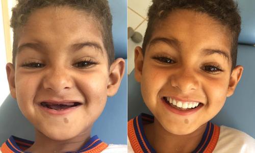 Criança Guajeruense tem sonho realizado por dentista: 'dentes iguais aos dos coleguinhas'