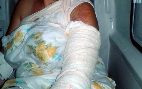Justiça decreta prisão preventiva de ex-vereador suspeito de mandar jogar ácido na ex-cunhada
