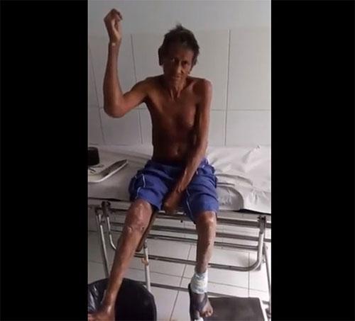 lavrador denuncia Secretaria Municipal de Rio do Ant?nio por descaso com seu tratamento de Hansen?ase